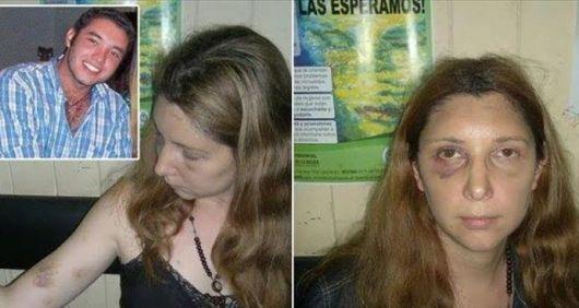 Odontóloga denunció ser secuestrada, torturada y violada por su novio